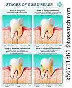 Stage of Gum Disease