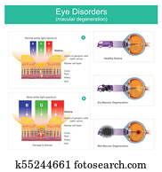 Macular degeneration is a medical condition which may result in blurred or no vision, Early on there are often no symptoms. Over time, however, some people experience a gradual worsening of vision that may affect one or both eyes. Illustration.