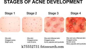 stufen entwicklung, von, acne., entzündet, haut, mit, scars,, akne, und, pimples., dass, struktur, von, entzündet, skin,, und, akne, und, pimples., infographics., vektor, illustration.