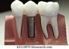 Capped Dental Implant Model
