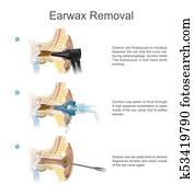 Earwax Removal. EARWAX s a common problem which is easily treated.