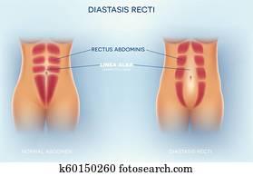Diastasis Recti or abdominal separation