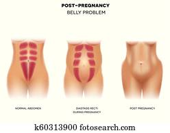 Female body before pregnancy, during pregnancy and after