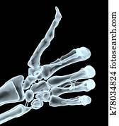 thumb up with xray hand