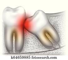 Wisdom tooth eruption problems