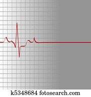 grid with heart beat and then flatline