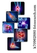 Human Joint Pain
