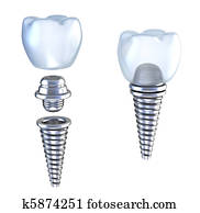 Dental implant 3d crown with pin
