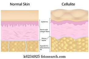 Cellulite versus smooth skin