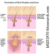 Formation of skin acne and pimples