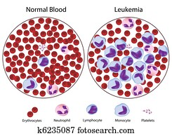 Leukemic versus normal blood