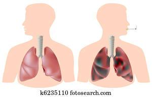 smoker's, vs., gesund, lunge