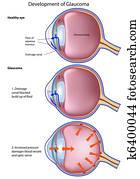 Glaucoma, eps8