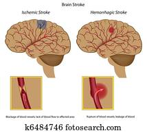 Brain stroke,