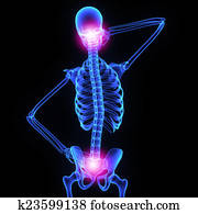 Neck and hip joint