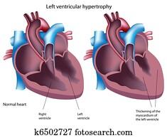 Left ventricular hypertrophy, eps8