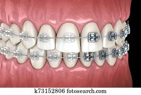 Teeth with metal and Clear braces in gums. Medically accurate dental 3D illustration