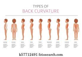 arten, von, back, curvature., medizinische, desease, infographic
