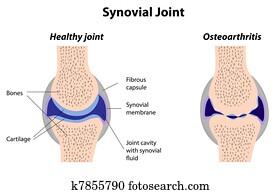 synovial, gelenk, normal, und, arthritis