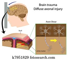 Brain trauma with axon shear, eps8