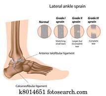 Ankle sprain grading, eps8