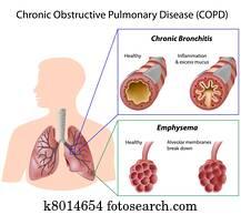 lunge, disease,, eps8