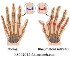 Rheumatoid arthritis of hand, eps8