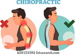 chiropraktik, begrifflich, vektor, abbildung, mit, hinterer knochen, curvature.