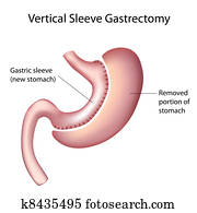 Vertical Sleeve Gastrectomy, eps8