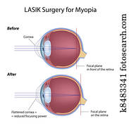 Lasik eye surgery for myopia, eps8