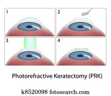Photorefractive Keratectomy, eps10