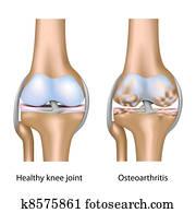 osteoarthritis, von, knie, joint,, eps10