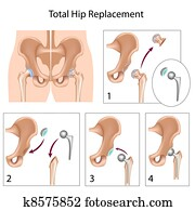 Total hip replacement, eps10