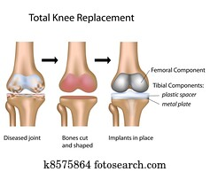 Total knee replacement, eps10
