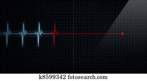 Heart Monitor Flat Line Death