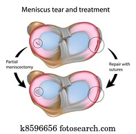 Meniscus tear and surgery, eps8