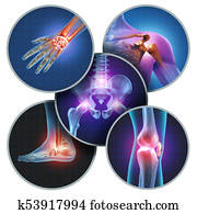 Human Painful Joints