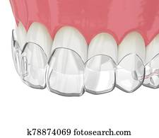 3d render of upper jaw with invisalign removable retainer