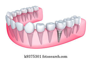 Dental implant in the gum