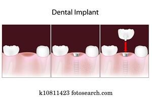 Dental implant procedure, eps10