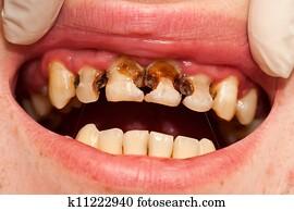 Destructed teeth
