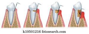 Development of periodontitis