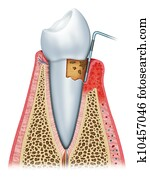 Gingivitis in its second stage