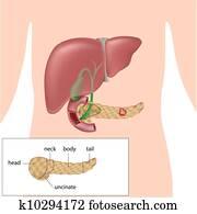 Pancreatic cancer, eps10