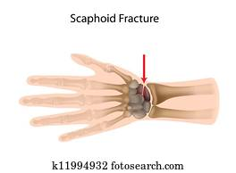 Scaphoid wrist fracture, eps10