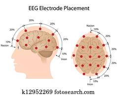 EEG electrode placement, eps10
