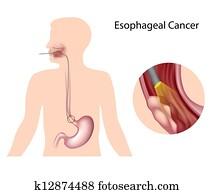Esophageal cancer , eps10