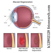 Eye macular degeneration