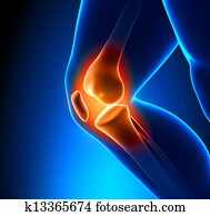 Hurt knee pain - trauma