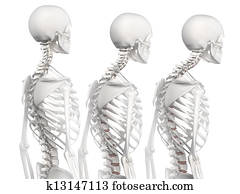 Kyphotic spine in 3 phases